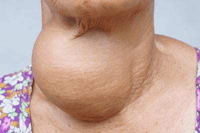Ứng dụng kỹ thuật mới trong điều trị triệt để u tuyến giáp  - ảnh 1