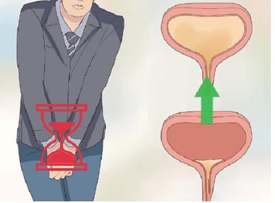 Kết hợp bài tập Kegel và Ích Tiểu Vương - Công thức đột phá giúp cải thiện tình trạng mắc tiểu nhiều lần  - ảnh 1