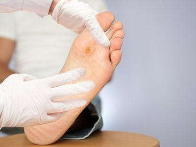 BoniDiabet – Giải pháp phòng biến chứng cắt cụt chân ở bệnh nhân tiểu đường  - ảnh 1