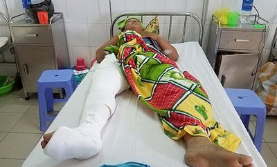 Quảng Nam: Cán bộ địa chính bị tông trọng thương khi đuổi theo xe chở cát lậu - ảnh 1