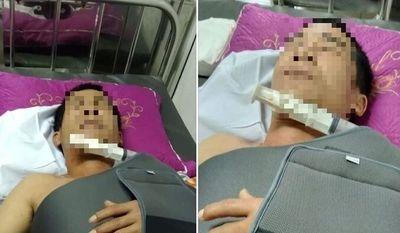 Nghệ An: Lái xe làm đứt dây mạng, người đàn ông bị hàng xóm vác dao truy sát  - ảnh 1