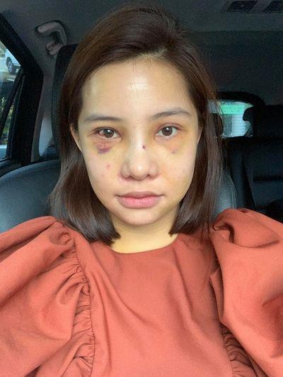 """Nữ diễn viên """"chạy trốn thanh xuân"""" công khai phẫu thuật thẩm mỹ toàn bộ gương mặt - ảnh 1"""
