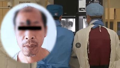 Người đàn ông bị ung thư ác tính do tự ý nặn mụn trên trán - ảnh 1