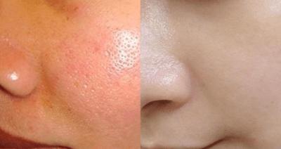 Trầy trật vì da khô, lỗ chân lông to cuối cùng cũng tìm ra bí kíp giúp da căng mịn, trắng hồng - ảnh 1