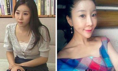 Sốc với gương mặt biến dạng của người mẫu 15 tuổi sau phẫu thuật thẩm mỹ