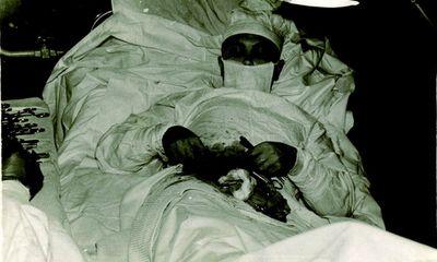 Lạnh người nghe chuyện bác sĩ Liên Xô tự mổ ruột thừa cho mình