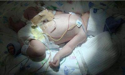 Kỳ lạ cô bé sinh ra với dòng máu 90\% huyết tương