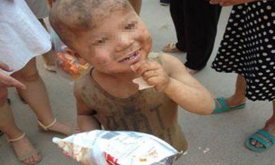 Xót thương bé trai 7 tuổi quanh năm sống trong chuồng lợn