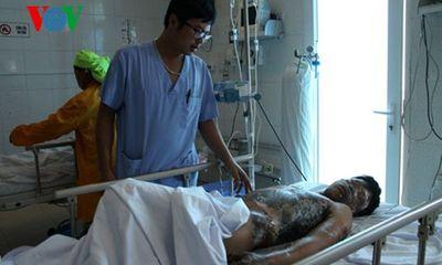 3 trẻ chăn trâu bị điện giật bỏng nặng