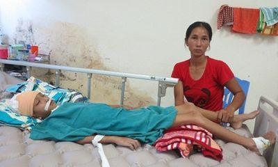 Con bị đánh chấn thương não: Mẹ bị