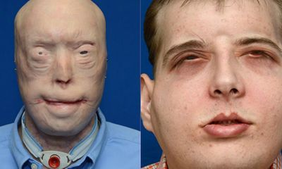 Người lính cứu hỏa bị bỏng nặng được cấy ghép mặt thành công