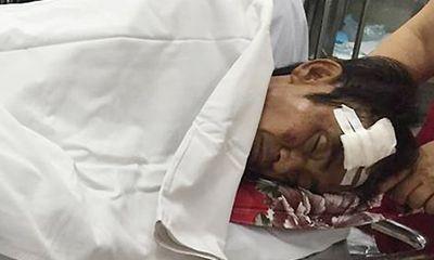 Ông Huỳnh Văn Nén bị tai nạn giao thông, chấn thương sọ não
