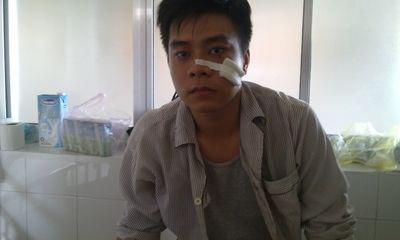 TP Huế: Xả súng kinh hoàng vào quán bida chỉ vì cho... bõ ghét