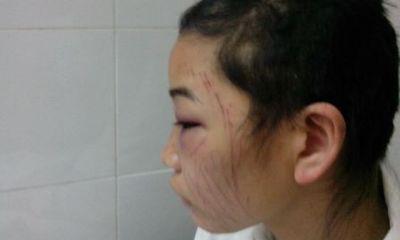 Ghen tuông điên loạn, chồng bắt vợ tự cắt tóc, rạch mặt