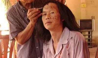 Hãi hùng với gương mặt như bị tạt axit của Hoài Linh