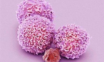 Bước đột phá diệt tế bào ung thư di căn
