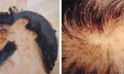 Hỏi Đáp Về Chữa Bệnh Rụng Tóc