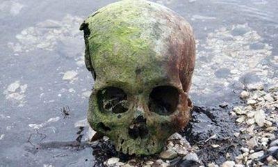Giải mã bí ẩn hộp sọ trẻ em rải đầy quanh hồ