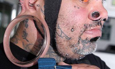 Người đàn ông có dái tai kỳ lạ, lớn nhất thế giới