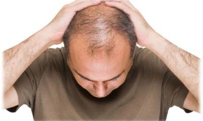 Khắc phục hói đầu ở nam giới