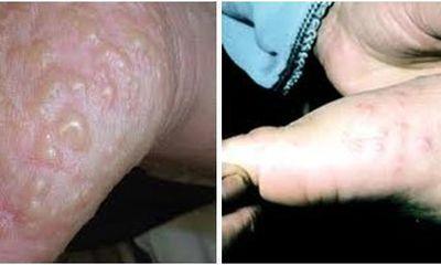 Chữa bệnh tổ đỉa ( viêm da tiếp xúc ) tốt nhất ở Bảo Thanh Đường