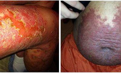 Bảo Thanh Đường: Nơi xóa tan nỗi ám ảnh bệnh ngoài da