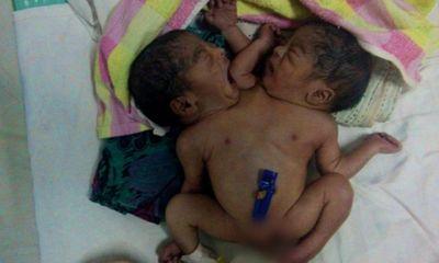 Cặp song sinh dính liền bị bố mẹ bỏ rơi trong bệnh viện
