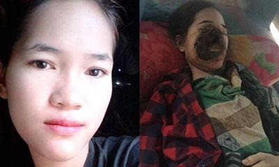 Cô gái trẻ xinh đẹp bị hoại tử gần hết khuôn mặt sau khi nhổ răng