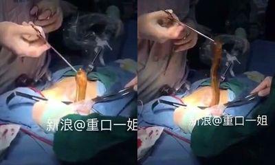 Bác sĩ phẫu thuật, gắp lươn ra khỏi bụng bệnh nhân gặp nạn vì tự sướng