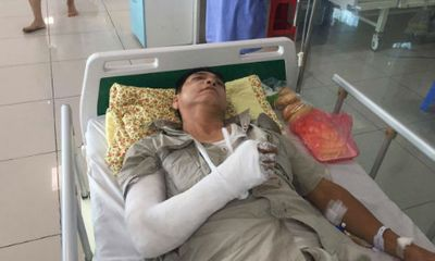 Ông già 61 tuổi bị nhóm thanh niên vô cớ đánh gãy tay, vỡ xương gò má