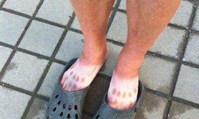 14 tai nạn cháy nắng khiến làn da trông như thịt nướng