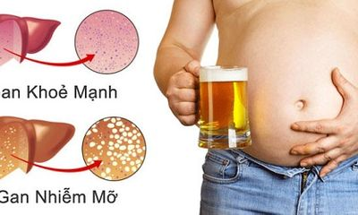 Phương pháp điều trị gan nhiễm mỡ tại nhà và những thực phẩm nên tránh
