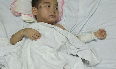 Cậu bé mất 2 chân sau vụ sạt lở đất ở Sơn La: