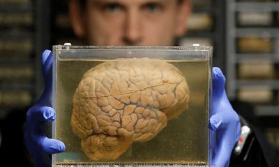 Làm chậm quá trình lão hóa, tăng tuổi thọ 12 năm nhờ cấy ghép não