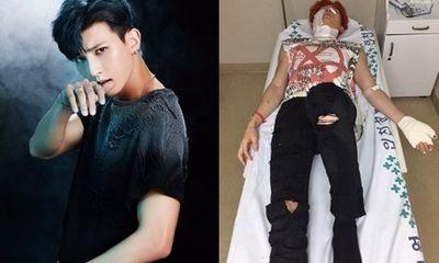 Nam thần tượng Kpop bị bỏng nặng khi đang quay MV mới