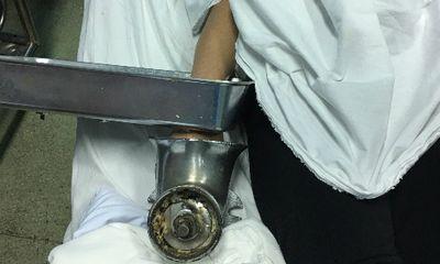 Kinh hãi tay người phụ nữ bị cuốn trong máy xay thịt