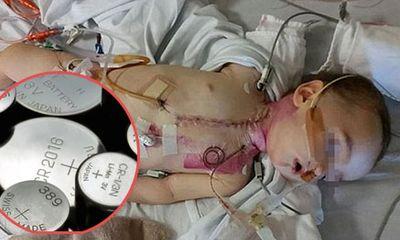 Cảnh báo: Bé gái 3 tuổi chịu đau đớn khi mắc pin khuy trong mũi