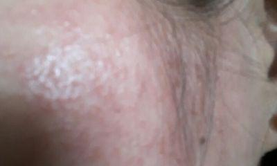 Mỹ phẩm thuốc Bắc gia truyền: Tàn phá da mặt!