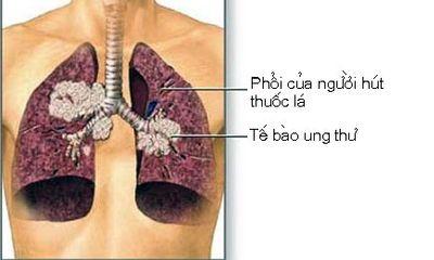 Thuốc lá nguyên nhân chính gây ra ung thư phổi