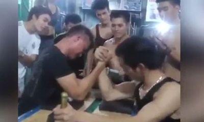 Quá mong chiến thắng, thanh niên bị gãy xương khi chơi trò vật tay