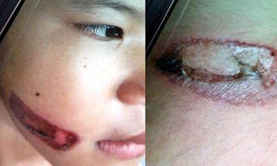 Giám định thương tật cháu bé 7 tuổi nghi bị dí sắt nung đỏ vào người