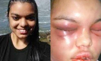 Cô gái trẻ bị bạn trai đánh biến dạng mặt chỉ vì được nhiều người 'Like' ảnh trên Facebook