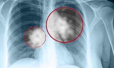 Căn bệnh ung thư phổi