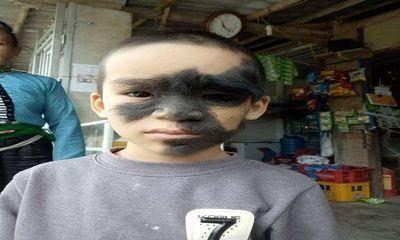 Số phận éo le của cậu bé 6 tuổi mang khuôn mặt