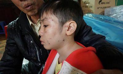 Bé trai 10 tuổi bị bố và mẹ kế bạo hành từng là học sinh giỏi hai năm liền