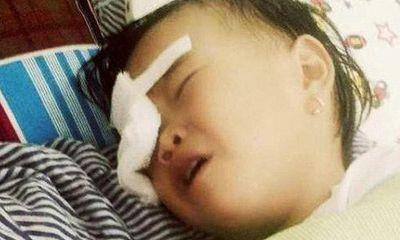 Bé gái 2 tuổi nguy cơ hỏng mắt vì bị gà chọi đá