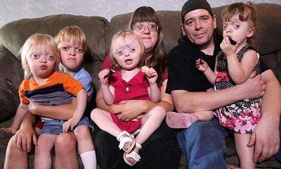 Người mẹ có 4 đứa con gương mặt dị thường đau xót vì những lời chế diễu
