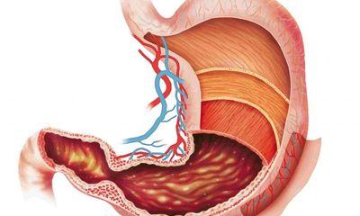 Đau dạ dày cấp: Cách xử lý để không thành mãn tính
