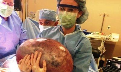 Hốt hoảng khi loại bỏ khối u buồng trứng nặng 22 kg