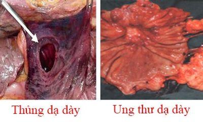 Nhầm lẫn tai hại bệnh nhân dạ dày thường mắc phải khi dùng Nano Curcumin